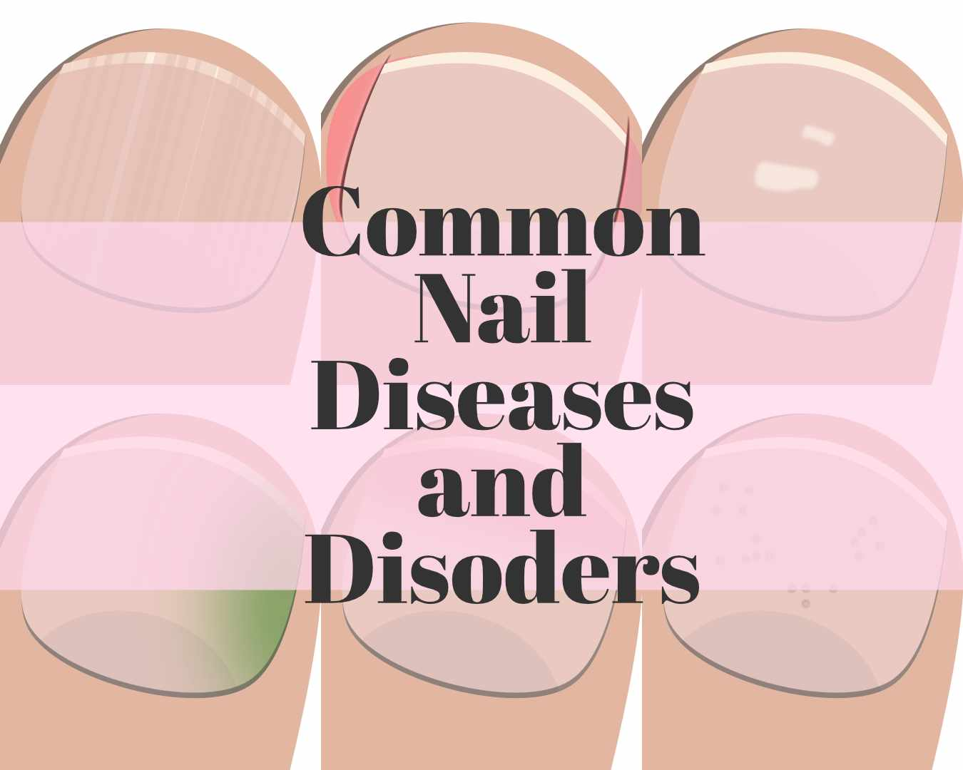 common nail diseases and disorders
