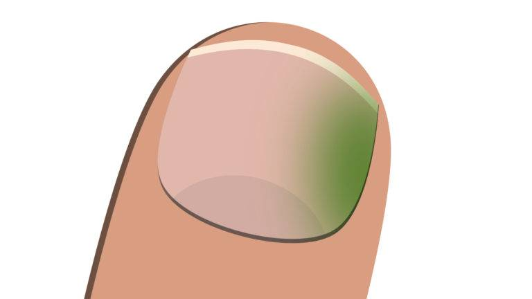 green nail syndrome illustration
