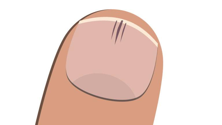 splinter nail illustration